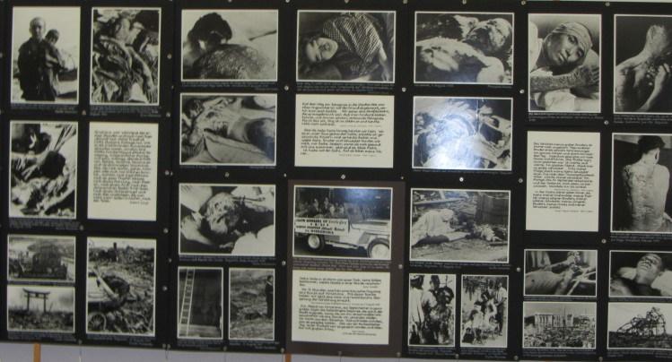 Bildnachweis: http://www.parow-info.de/Parow%201990/Archiv/MSeelsorge/2011/Ausstellung_2012.html Die Bilder zeigen Opfer mit Kombinationen von Verbrennungs- und Strahlenschäden.