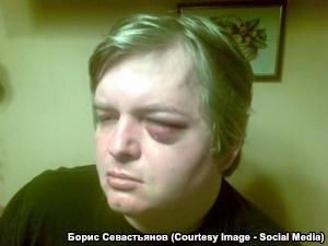 Der verletzte Wassilij Rjabko